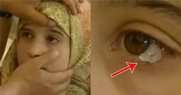 Hiện tượng cô gái khóc ra pha lê khiến dư luận hoang mang