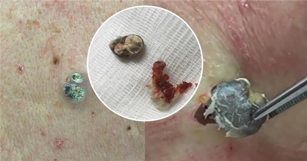 Sốc với ca phẫu thuật cho 2 lỗ chân lông lớn nhất trong lịch sử