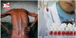 Tin vui: Đã có người được chữa khỏi HIV/AIDS