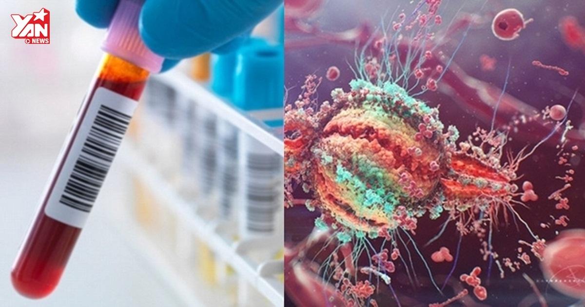 Nóng: Phát hiện kháng thể vô hiệu hóa được 98% các chủng virus HIV