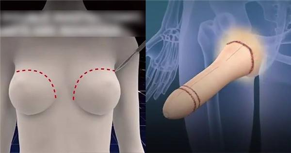 Phẫu thuật chuyển giới từ nữ sang nam sẽ được làm như thế nào?
