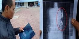 Sốc: Sau ca mổ, bác sĩ bỏ quên 'kéo' trong bụng bệnh nhân suốt 18 năm